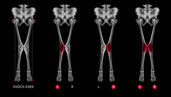 Valgus alignment leg or Knock-knee red highlights on knee joint- X ray film- Medical illustration- Healthcare- Human Anatomy and Medical Concept -Isolated on black background
